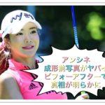 【ゴルフ】アンシネの成形前写真!ビフォーアフターで見る真実とは